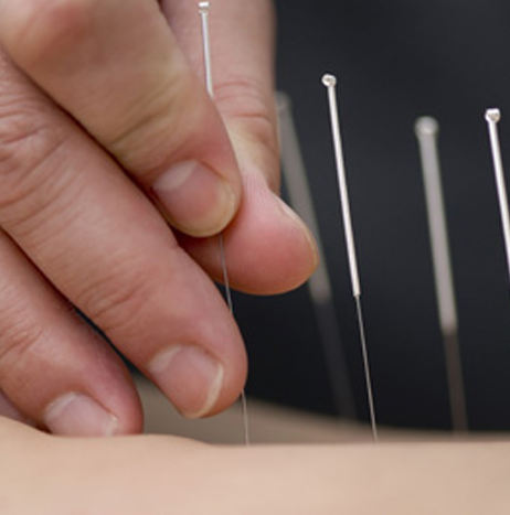 Acupuncture & Dry Needling Therapy